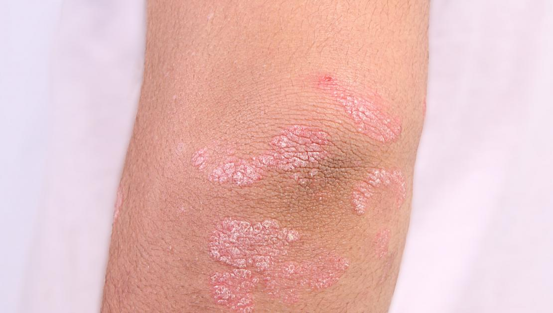 psoriasis coude